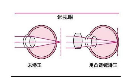远视验光配镜原则
